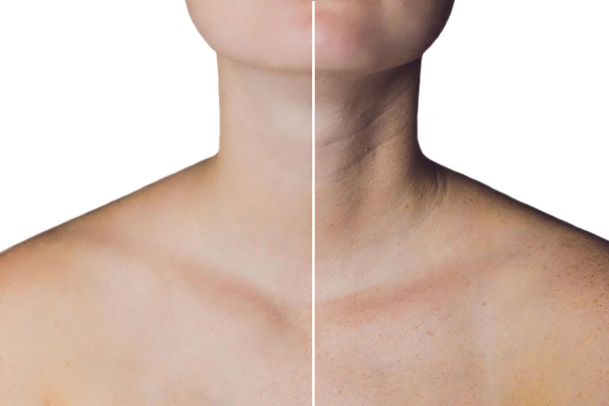 laxité cutanée sur le cou