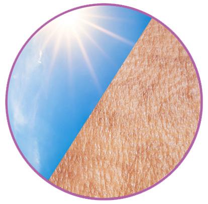 peau et soleil