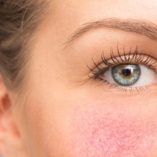 Combattre les rougeurs du visage, couperose et rosacée.