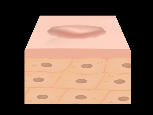 corriger cicatrice hypertrophique