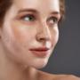 Effacer cicatrice questions médecine esthétique